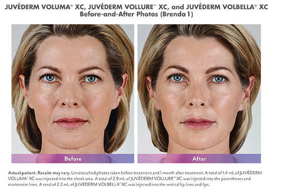 How Juvederm Voluma Changed my Life